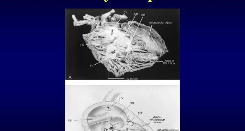 Ppt Ventricular Septal Defect Powerpoint Presentation